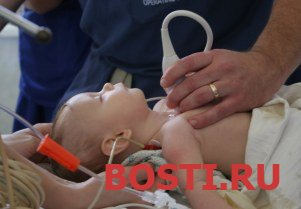 Влияние модифицированной ультрафильтрации на воспалительный ответ в хирургии открытого сердца у детей
