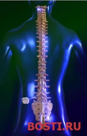 Лечение боли методом нейростимуляции